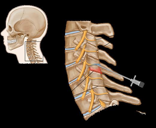 Neck joint anatomy