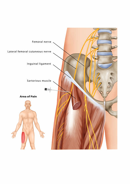lateral femoral cutaneous nerve block | pain treatment | pain spa, Muscles