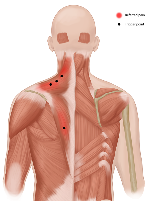 Trigger Point Injection | Myofascial Pain Treatment | Pain Spa ...