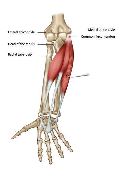 tennis elbow physiotherapy treatment pdf