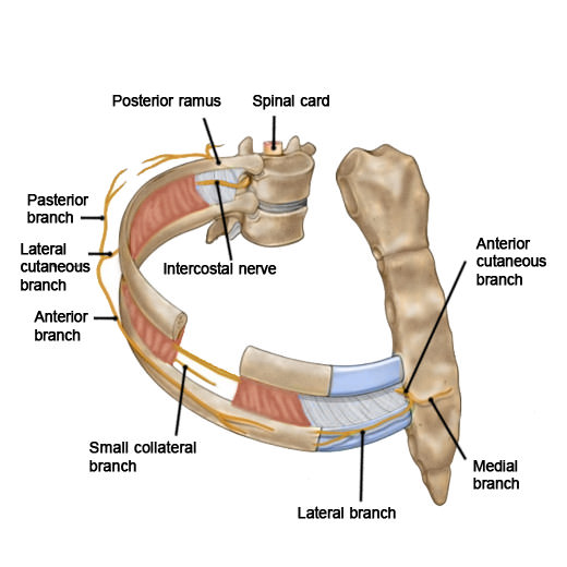 Image result for Intercostal neuralgia