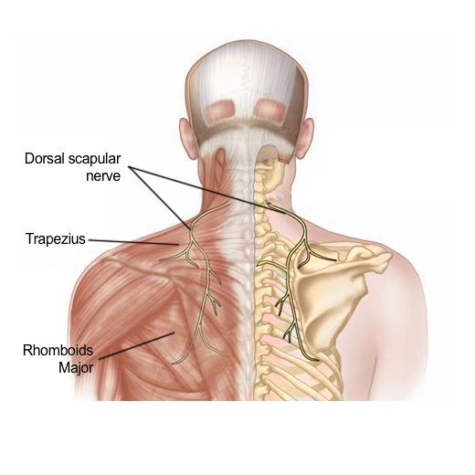Dorsal Scapular Nerve Entrapment Syndrome Pain Spa