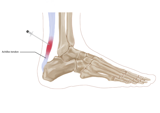 Achilles tendon injection opt
