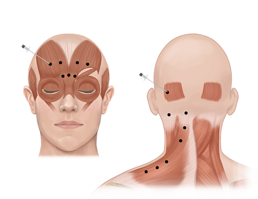Botox for Migraine injection opt