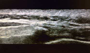 Caudal injection under ultrasound opt