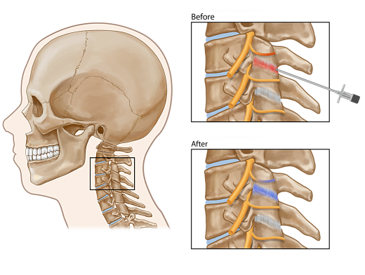 Cervical Facet Joint Injection opt