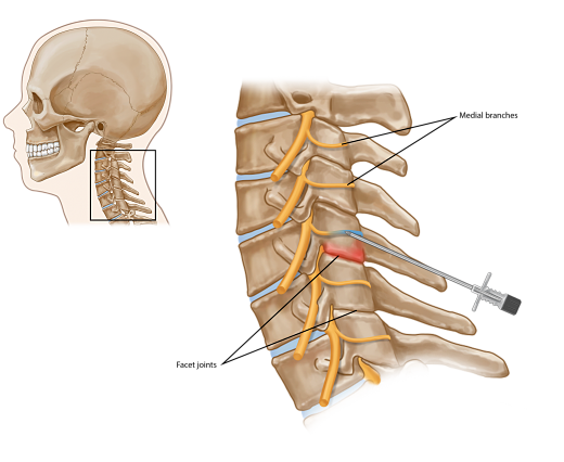 Cervical Medial Branch Blocks