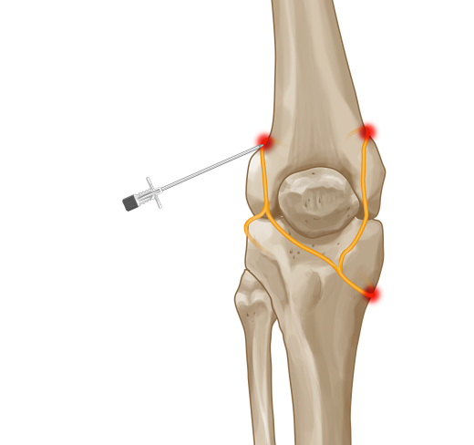 Cool RF knee opt