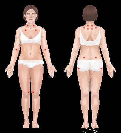 Fibromyalgia opt