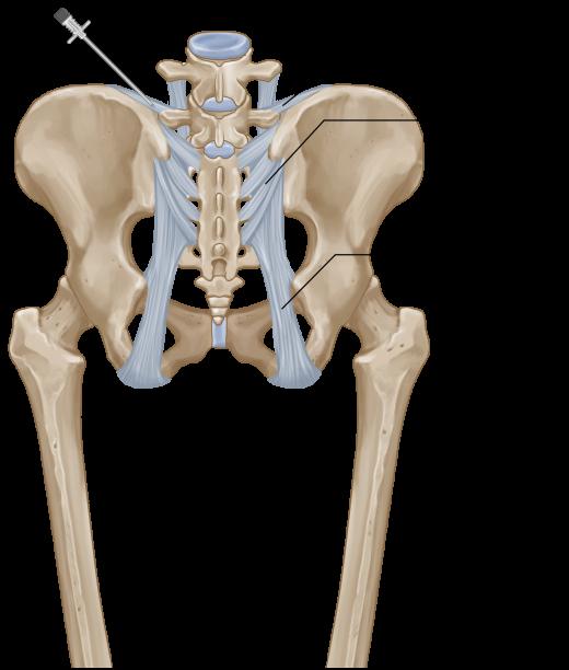 Iliolumbar ligament injection opt