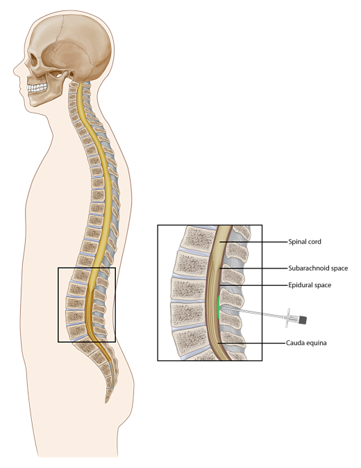 Lumbar Epidural Injection opt