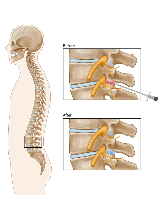 Lumbar Facet Joint Injection opt