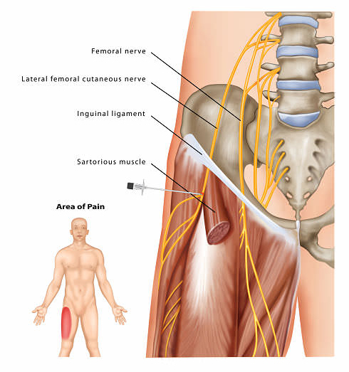 Meralgia Paresthetica needle opt