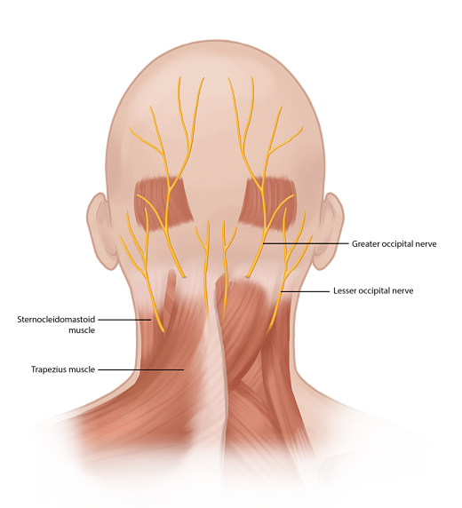 Occipital neuralgia opt