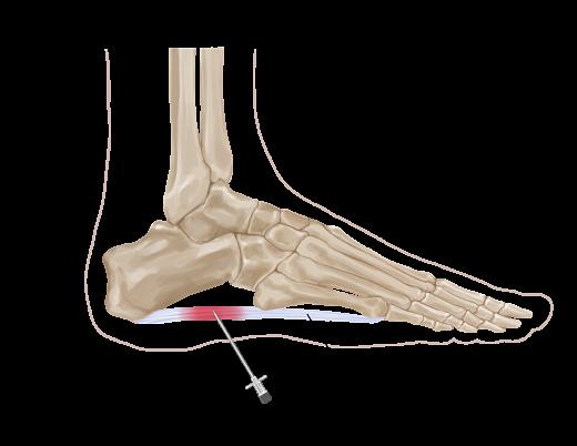 Plantar fascia injection opt