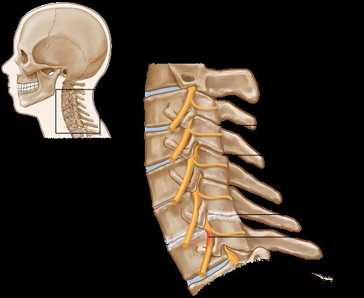Spondylosis opt