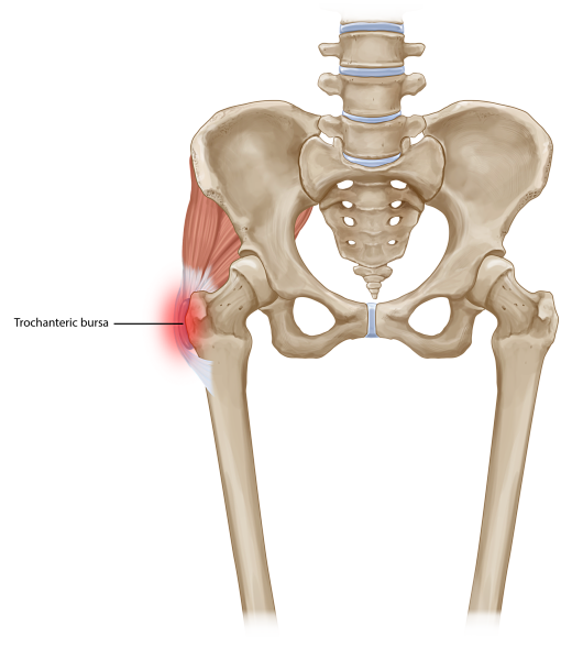 Trochanteric bursitis opt