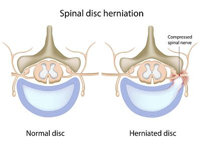 disc herniation opt