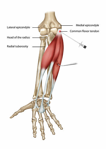 golfers elbow with needle opt