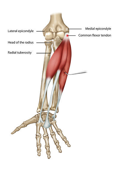 golfers elbow opt