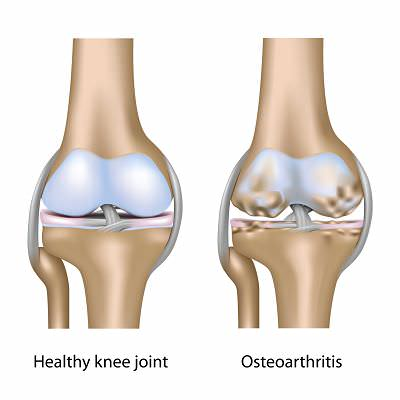 knee OA and healthy knee opt
