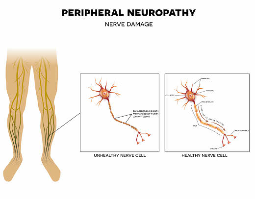 peripheral neuropathy opt